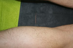 Dry Needling Sint Pauwels